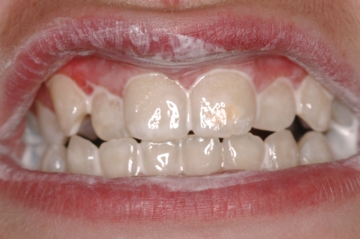 Teeth Coated with GC Tooth Mousse