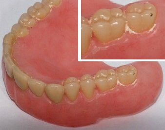 Denture weith cal -not cleaned 2nd